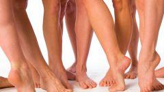Как убрать косточку на большом пальце ноги