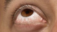 Why burst capillaries in the eyes