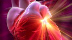 Почему останавливается сердце