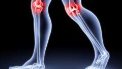 Как диагностировать артрит суставов