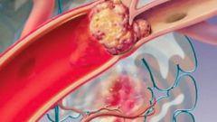 Как помочь больному при атеросклерозе сосудов головного мозга
