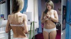 Как вылечиться от анорексии