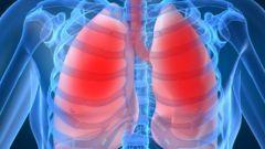 Как излечиться от туберкулеза