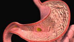 Как сделать эффективным лечение гастрита