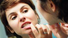 Как определить симптомы воспаления десен