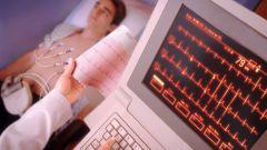 Как распознать симптомы инфаркта