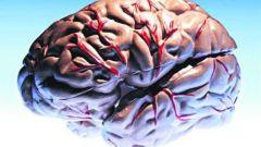 Что такое инсульт мозга