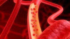 Что делать при атеросклерозе сосудов