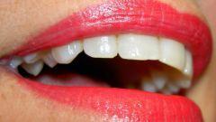 Как удалить зубной налет