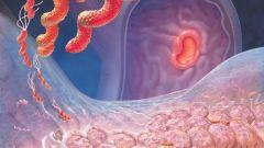 Как выявить симптомы гастрита