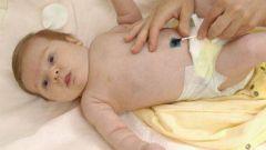 Как обрабатывать пупок новорожденного