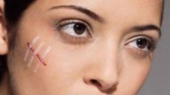 Как избавиться от рубцов и шрамов