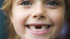 Как выдернуть зуб дома