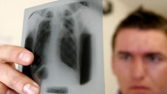 How to find out if I have tuberculosis