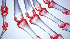 Как вылечить ревматоидный артрит