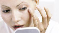 Как лечить отеки глаз