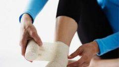 Как лечить растяжение сухожилий