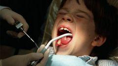 Как лечить зубы маленьким детям