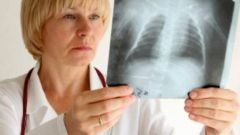 How to distinguish bronchitis from pneumonia