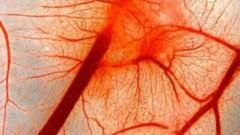How to restore blood vessels