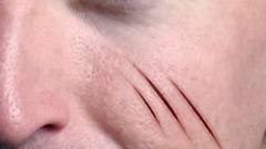 Как сделать шрам