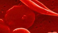 Как понизить эритроциты