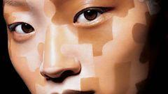 Как избавиться от белых пятен на коже