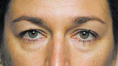 Как лечить мешки под глазами
