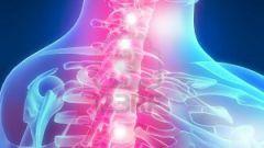 Как избавиться от остеохандроза