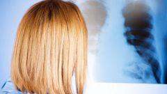 Как узнать воспаление легких