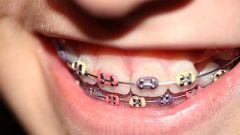 Как исправить прикус зубов