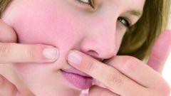 Как избавиться от рубцов после акне