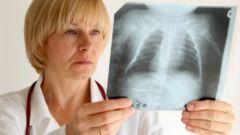 Как лечить туберкулез у детей