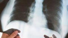 Как отличить бронхит от воспаления легких