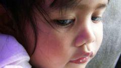 Как избавиться от молочницы у ребенка