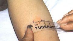 Как выявить туберкулез