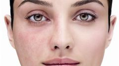How to get rid of spider veins on the face