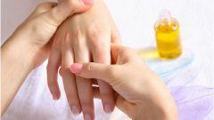 Как лечить связки рук