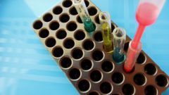 Как определить группу крови человека