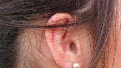 Как облегчить боль в ухе