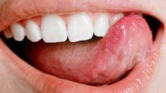 Как остановить кровь из языка