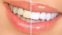 Как отбелить зубы за неделю