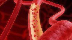 Как ученые использовали липосакцию для создания сосудов сердца