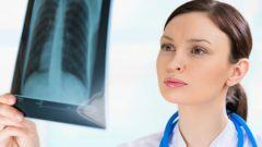 Симптомы, лечение и профилактика рака легкого
