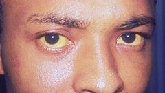 Синдром Жильбера: профилактика и лечение