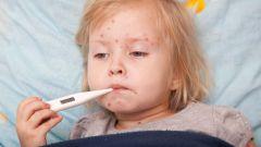 Краснуха и ее клиническая картина