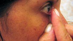 Применение контактных линз
