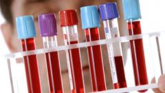 Цитомегаловирусная инфекция: симптомы и лечение