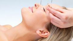 The benefits and harms of acupuncture