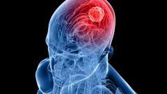 Глиома головного мозга: симптомы и лечение